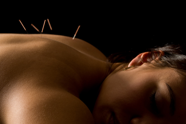 Acupuncture in frisco CO